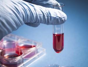 Кръвен тест показва колко ефирасно ще е лечението с антибиотици
