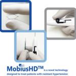 Устройството MobiusHD за лечение на резистентна хипертония получи одобрение от ЕС
