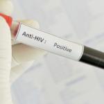 Мобилна лаборатория за безплатно изследване за ХИВ/СПИН ще работи днес в Горна Оряховица
