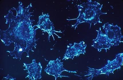 Откриха как гените на туморите помагат за лечението на рака