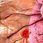 Ето ги признаците, че в тялото се развират ракови клетки