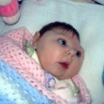 Великобритания в паника от Зика, в Испания - първо бебе с микроцефалия