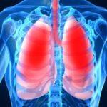 """Скрининг за риска от туберкулоза от днес в УМБАЛ """"Свети Георги"""""""