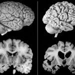Ново лекарство за Алцхаймер показва впечатляващи резултати