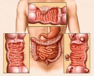 Всяка година 4200 чуват диагнозата рак на дебелото черво, 2400 - умират