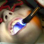 До 70 на сто намаляват кариесите след силанизиране на детските зъби