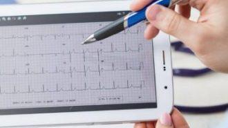 Отвъд възможностите на технологиите: Софтуер открива навреме сърдечните болести