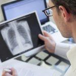 Личните лекари не одобряват Националния рамков договор
