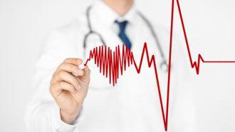 Рискът от инсулт е по 5 при предсърдно мъждене