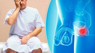 Ракът на простата поразява и без симптоми