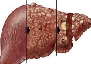 Хепатит Е - новата заплаха
