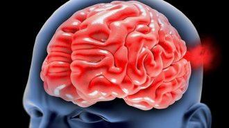 Български лекари извършиха иновативна операция и спасиха мъж с аневризма в мозъка