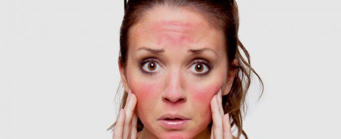 Слънчевата алергия мъчи до живот