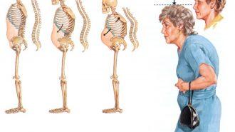 Остеопорозата поразява не само възрастни, но и млади