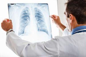 Всеки 5-и починал от рак е с тумор в белия дроб