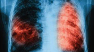 """Започват """"Дни на отворените врати"""" по туберкулоза в цялата страна"""