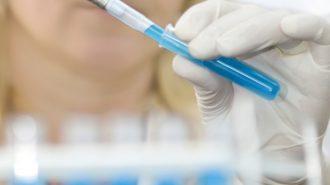 Все повече болни ученици от хепатит А
