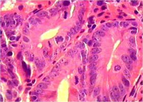 Метаплазия и рак - ето каква е връзката