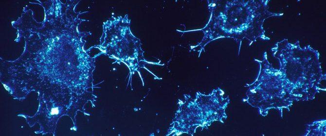 Близо два пъти са се увеличили заболяванията от рак у нас за последните 20 години