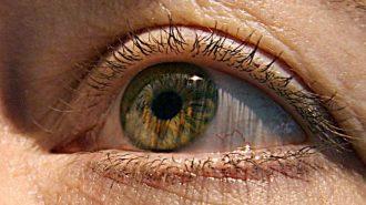Стволови клетки излекуваха слепотата на пациенти