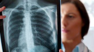 Почти всеки с рак на белия дроб открит в последен стадий