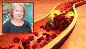 Д-р Галина Стоянова: Високият холестерол води до инфаркт и инсулт