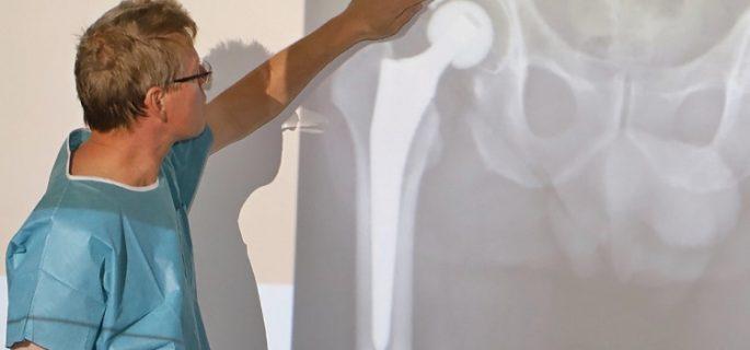Проф. д-р Неделчо Цачев: Капсула с витамин Е удължава живота на тазобедрения имплант