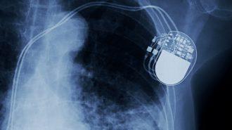 Здравната каса заплаща ли за амбулаторно наблюдение след поставяне на пейсмейкър?