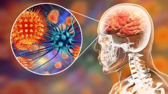 Д-р Красимира Кинова: Чревните вирусни инфекции могат да причинят менингит