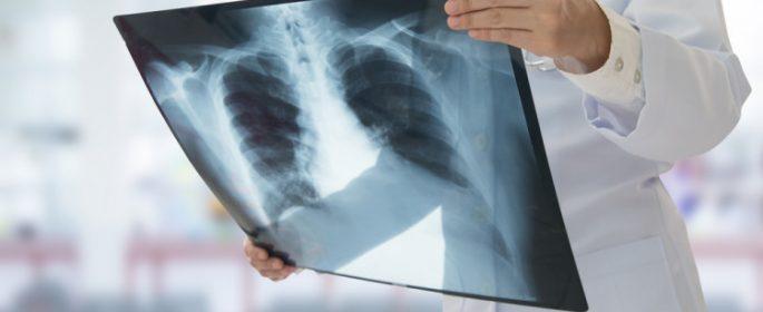 Доказано! Рентгеновите лъчи предизвикват рак