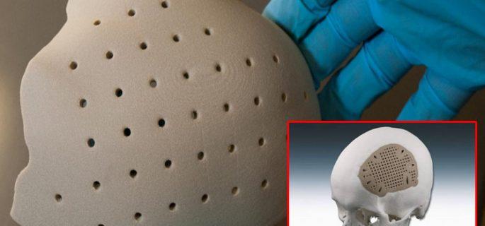 Д-р Асен Хаджиянев: 3D имплант заменя липсващи кости на черепа