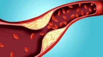Д-р Мясников посочи седемте най-добри продукта срещу атеросклероза