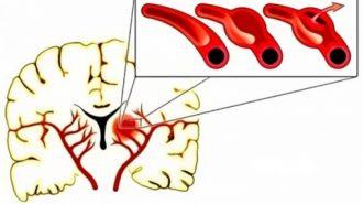 Първите признаци на аневризма в мозъка