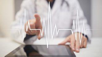 Д-р Светослав Куртев: Аритмията води до инсулт