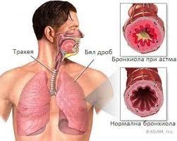 Астмата и полипите в носа често вървят заедно