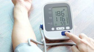 Защо имам нисък пулс при наличие на високо кръвно?
