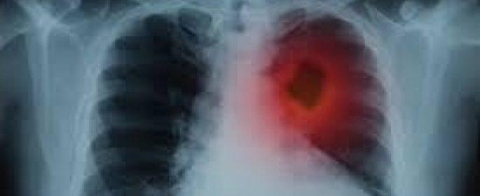 Ракът на белия дроб може да бъде открит чрез обикновен кръвен тест