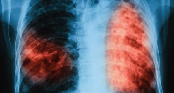 МЗ: Трайно намалява броят на болните от туберкулоза в страната